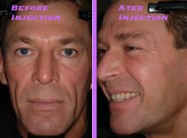Bradford-Bio-Alcamid procedure: Before & After